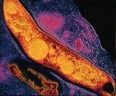 Обща етиология на болестите